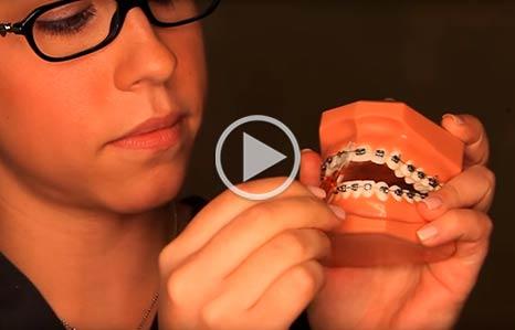 Wearing Braces Yu Orthodontics in Gaithersburg, MD