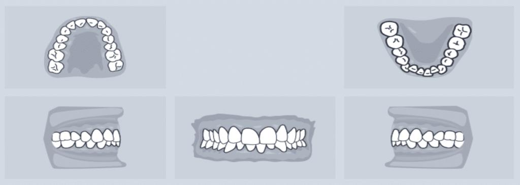 Orthodontic photo demonstration